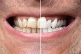 Man Teeth Before And After Whitening - 221372176