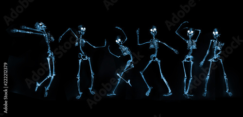 Dancing Skeletons X ray