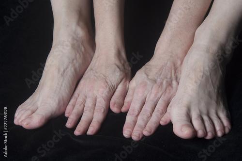 Pieds et mains de femme âgée - 222764128