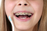 Young girl with braces and toothbrush