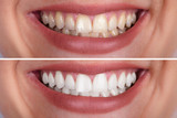 Woman's Teeth Before And After Whitening - 223704382