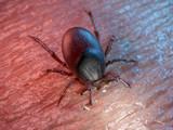 3d rendered illustration of a tick on human skin