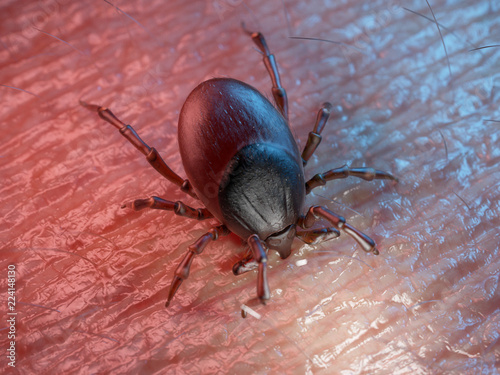 3d rendered illustration of a tick on human skin