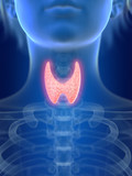3d rendered medically accurate illustration of an inflamed thyroid gland