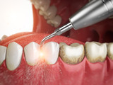 Professional teeth cleaning. Ultrasonic teeth cleaning machine delete dental calculus from human teeth. - 225025190
