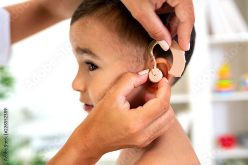 Foto Murales Placement of the hearing aid medical device