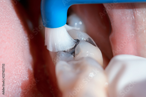 Dental hygienist examining a patient's teeth in the dentist. - 227622752