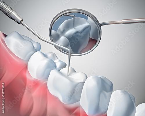 Zahnuntersuchung - Vorsorge - 227759339