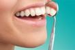 Woman teeth and a dentist mouth mirror