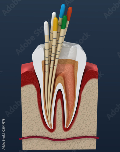 Gutta percha endodontics instrument, dental anatomy. 3D illustration - 230119578