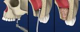 Sinus Lift Surgery - Sinus Augmentation. 3D illustration - 230120317