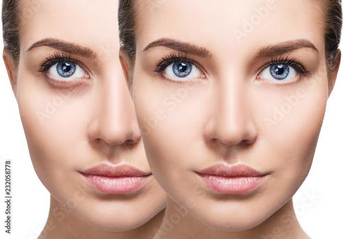 Leinwandbild Motiv Female eyes with bruises under eyes before and after cosmetic treatment.