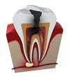 canvas print picture - Tooth decay. Medically accurate tooth 3D illustration