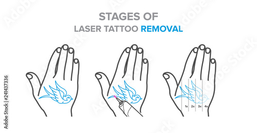 Stages Of Laser Tattoo Removal Illustration Vector Icons Buy