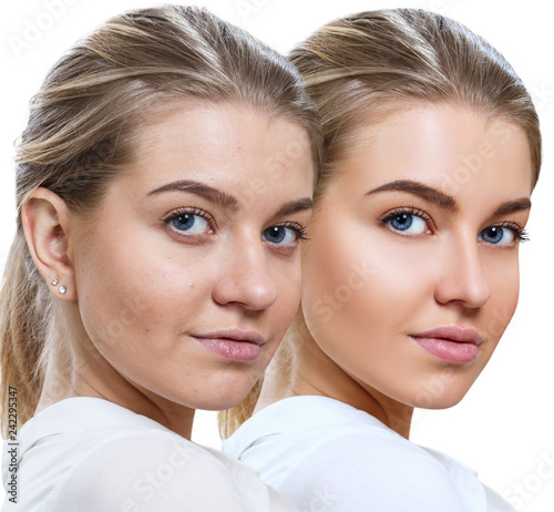 Comparison portrait of young woman before and after retouch. - 242295347