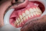 Dentes - 242408708