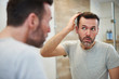 Leinwandbild Motiv Mature men is worried about hair loss