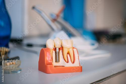 fototapeta na ścianę Dental Dentist Objects, Denture Teeth