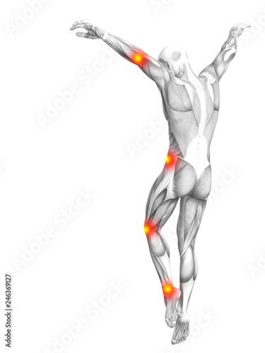 Leinwandbild Motiv Conceptual human muscle anatomy with red and yellow hot spot inflammation or articular joint pain for health care therapy or sport concepts. 3D illustration man arthritis or bone osteoporosis disease