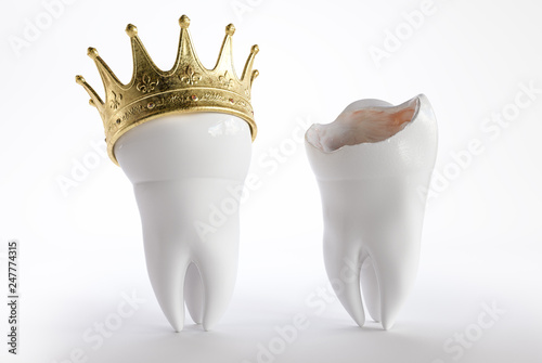 Tooth with a crown - 3D Rendering - 247774315