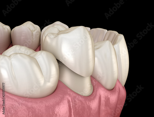Dental crown premolar tooth assembly process. Medically accurate 3D illustration of human teeth treatment - 250158977