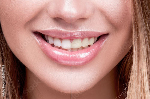Perfect healthy even and white teeth. teeth whitening. a comparison. Close-up