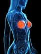 Leinwandbild Motiv 3d rendered medically accurate illustration of diseased mammary glands