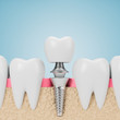 Teeth with implant screw, blue background - 255430138