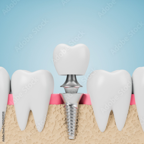 Leinwanddruck Bild Teeth with implant screw, blue background