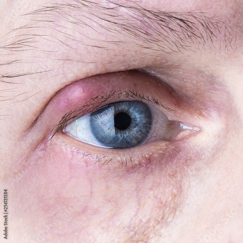 Infected purulent eye. close up eye infection