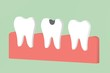 canvas print picture - decay tooth or dental caries - teeth cartoon 3d render