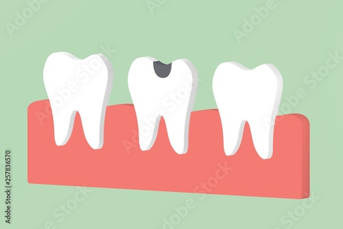 canvas print picture decay tooth or dental caries - teeth cartoon 3d render