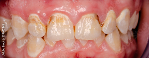 canvas print picture closeup of teeth