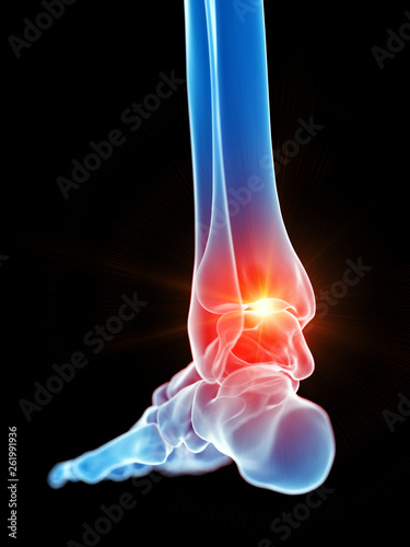 3d rendered medically accurate illustration of the ankle joint showing pain © Sebastian Kaulitzki