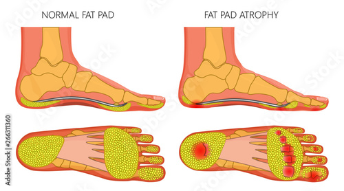 vector illustration, diagram of a healthy foot and a foot with a fat pad  atrophy